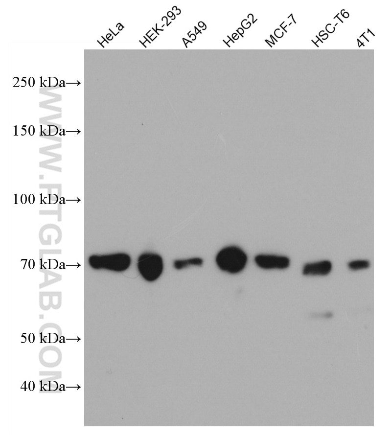 WB analysis using 67027-1-Ig