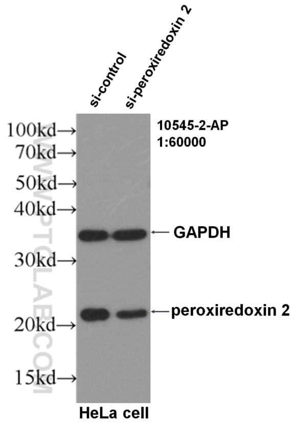 WB analysis of HeLa using 10545-2-AP