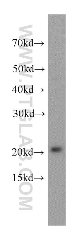 WB analysis of HeLa using 20569-1-AP
