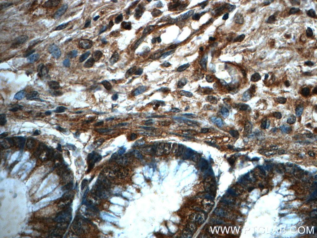 IHC staining of human colon using 60286-1-Ig