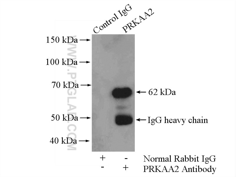 IP experiment of mouse skeletal muscle using 18167-1-AP
