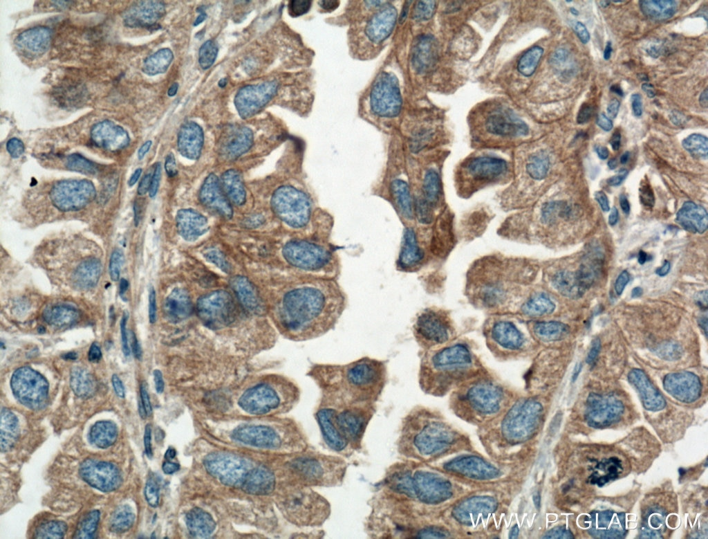 IHC staining of human lung cancer using 10308-1-AP