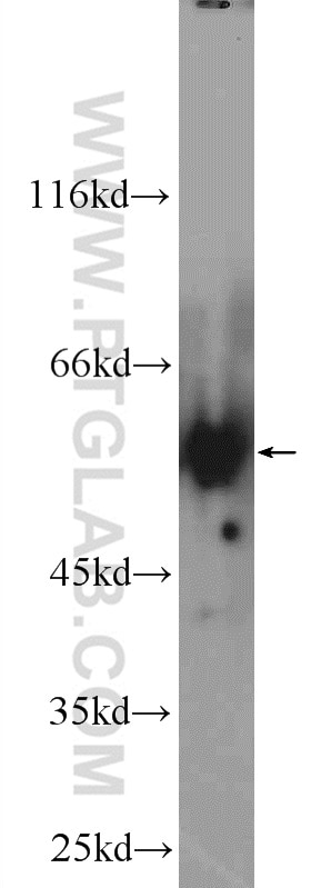HeLa cells were subjected to SDS PAGE followed by western blot with 12568-1-AP(  AMPK gamma2 antibody at dilution of 1:600 incubated at room temperature for  ...