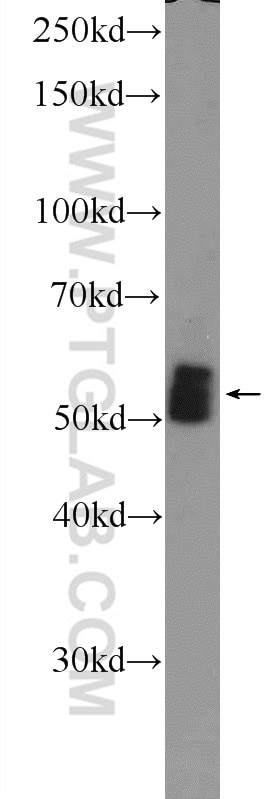 mouse heart tissue were subjected to SDS PAGE followed by western blot with  12568-1-AP( AMPK gamma2 antibody at dilution of 1:600 incubated at 4 degree  ...