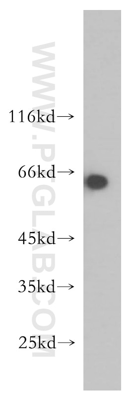 mouse eye tissue were subjected to SDS PAGE followed by western blot with  12568-1-AP(AMPK gamma2 antibody) at dilution of 1:400 incubated at room ...