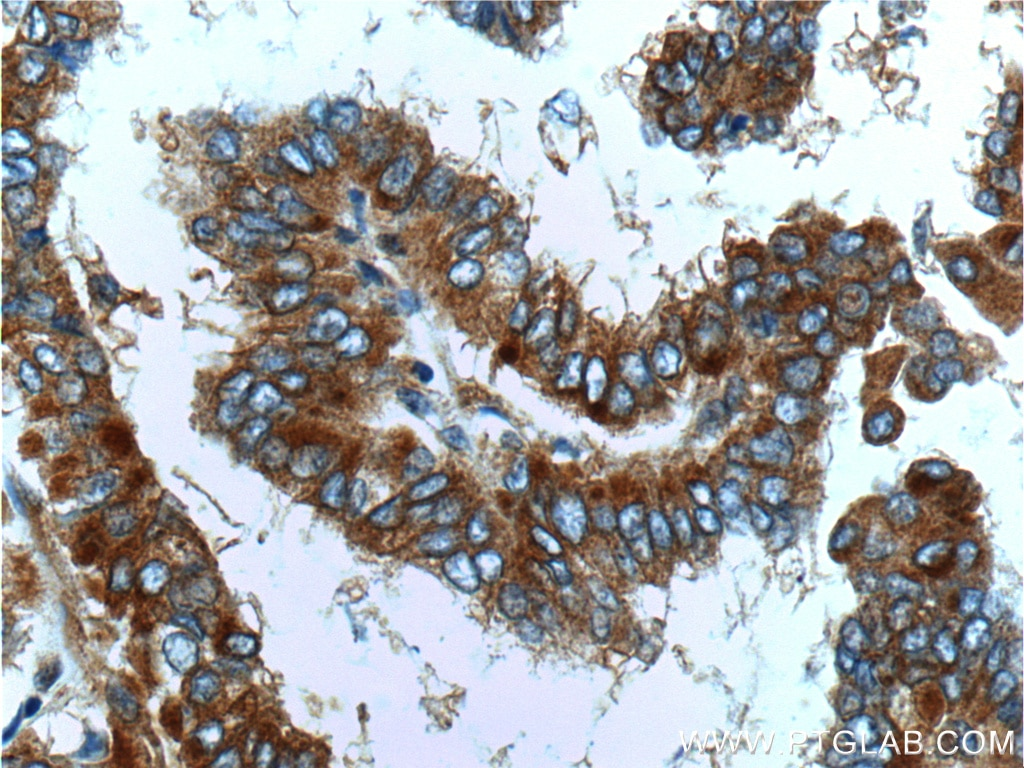 IHC staining of human thyroid cancer using 21991-1-AP