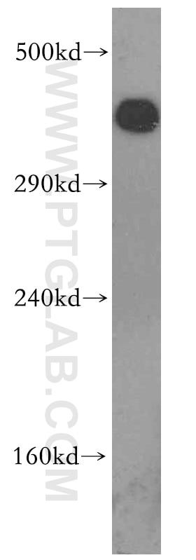 WB analysis of HeLa using 19983-1-AP