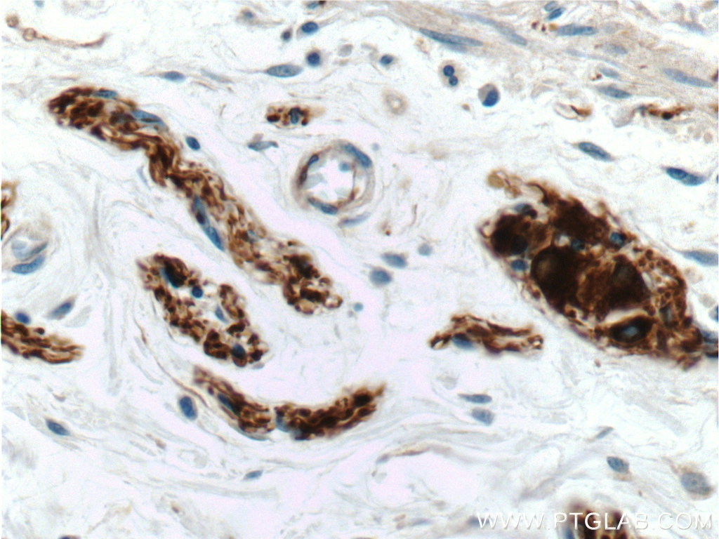 IHC staining of human colon using 17399-1-AP