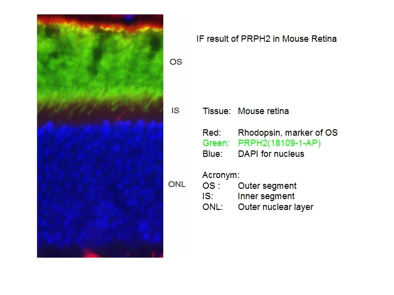 IF Staining of mouse Retina tissue using 18109-1-AP