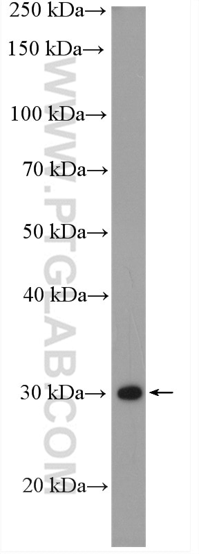 WB analysis of A431 using 12059-1-AP