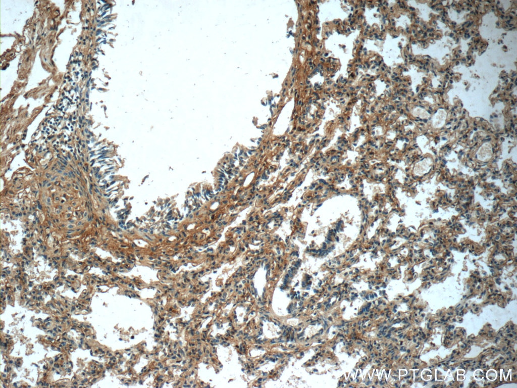 IHC staining of human lung using 20921-1-AP