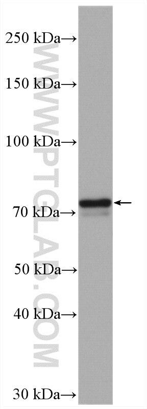 WB analysis of HeLa using 13393-1-AP