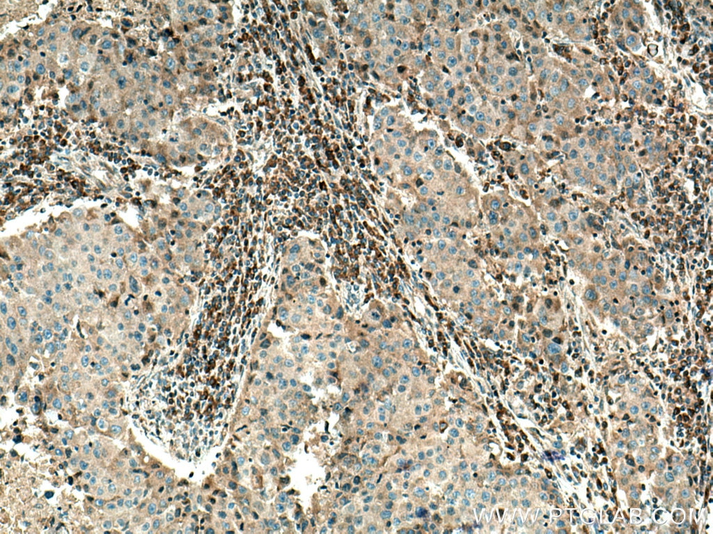 IHC staining of human breast cancer using 12375-1-AP