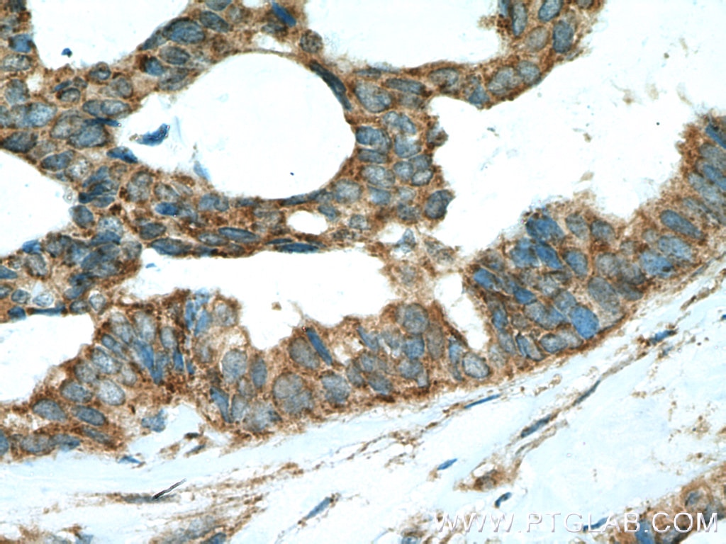 IHC staining of human breast cancer using 20145-1-AP
