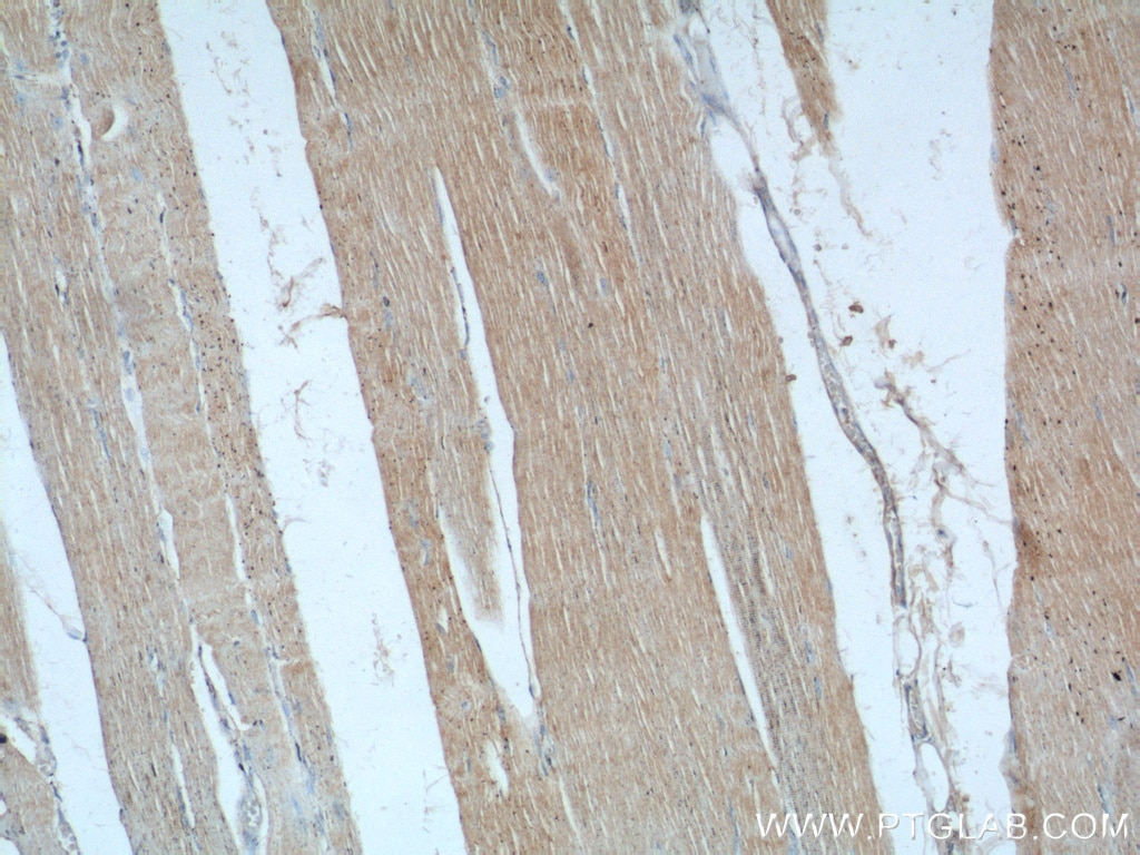 IHC staining of human skeletal muscle using 24570-1-AP