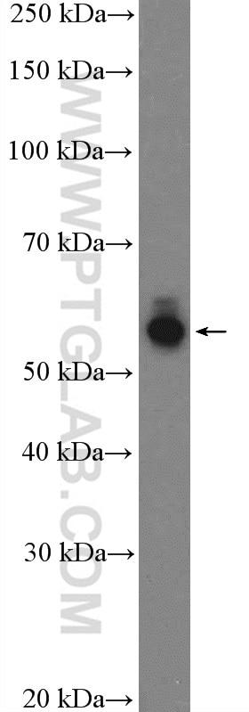 WB analysis of SH-SY5Y using 24713-1-AP