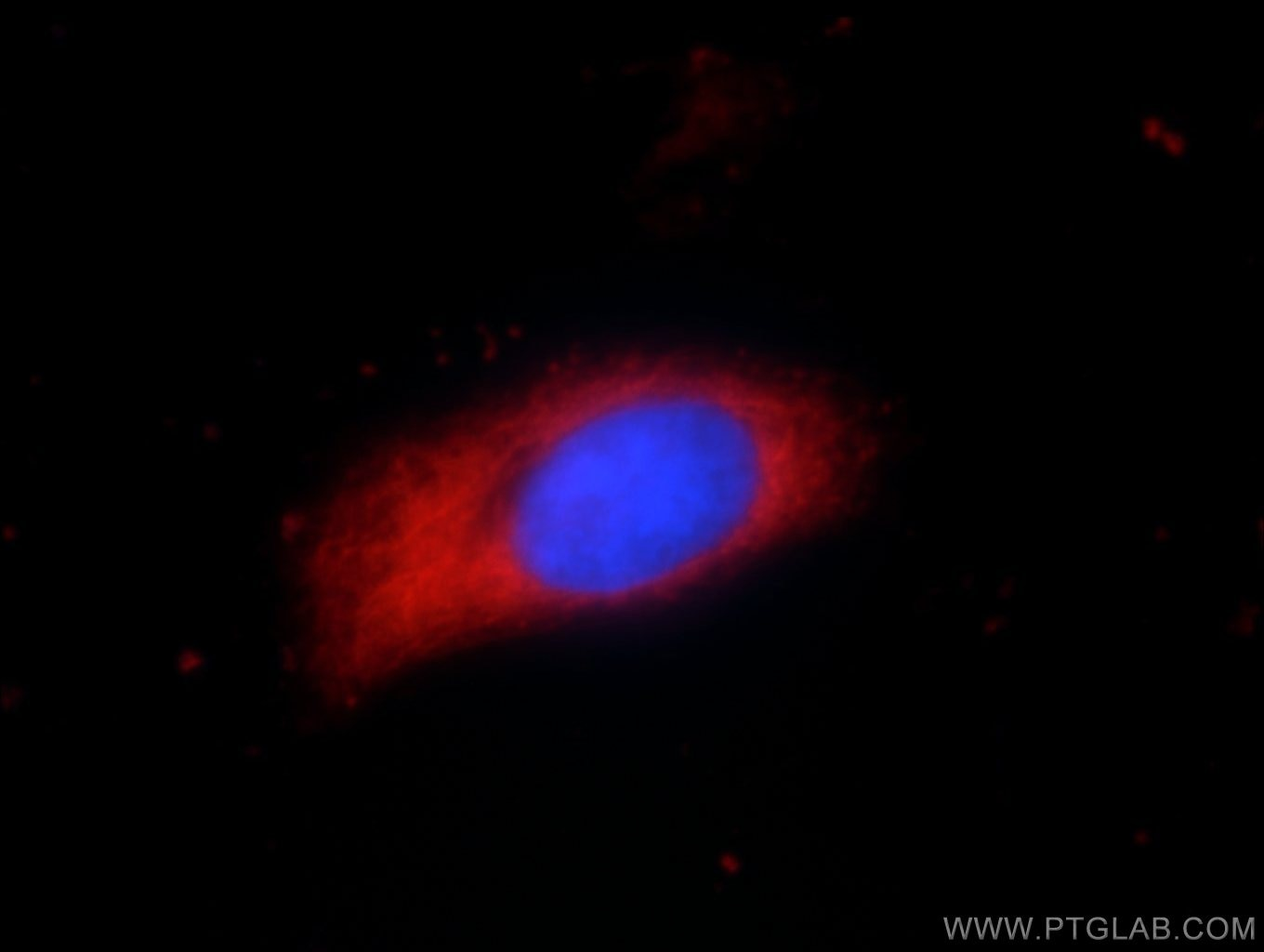 IF Staining of HeLa using 55060-1-AP