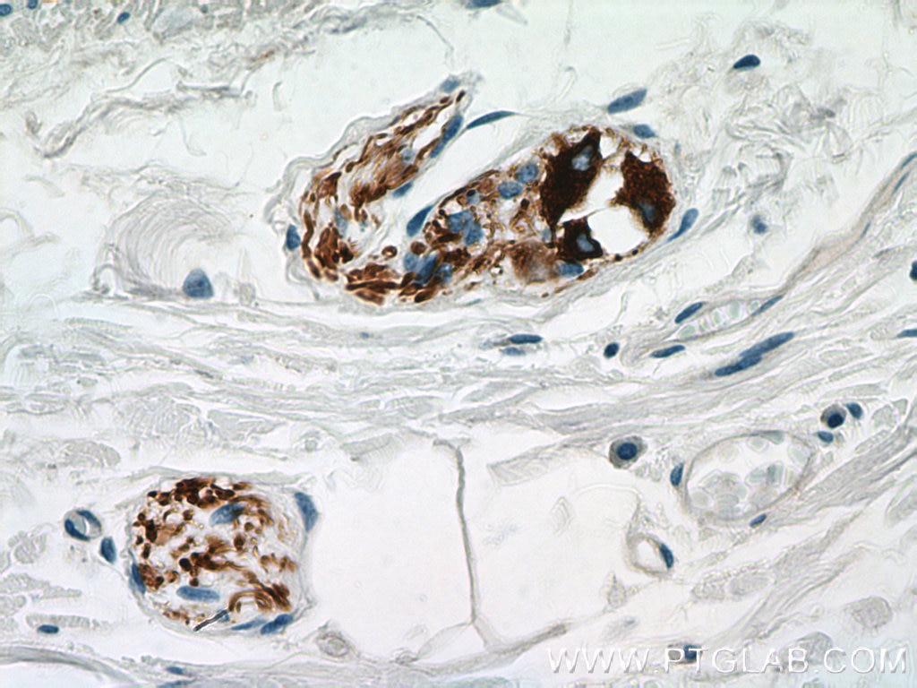 IHC staining of human colon using 66317-1-Ig
