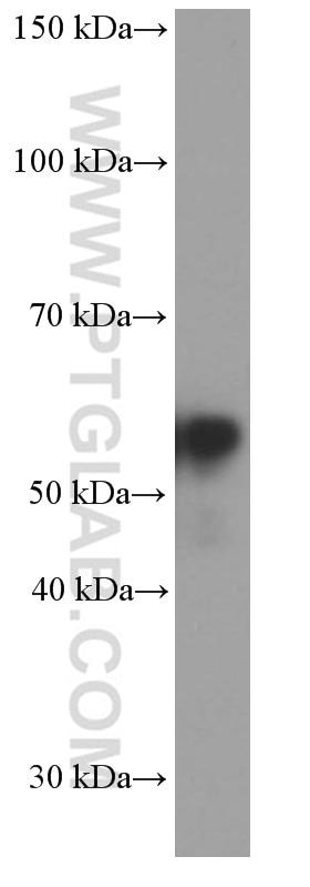 WB analysis of rat brain using 66317-1-Ig