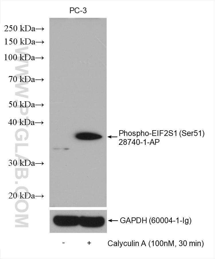 WB analysis using 28740-1-AP