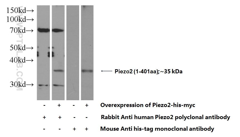 Piezo2 Polyclonal antibody