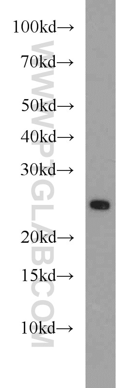 WB analysis of mouse spleen using 15903-1-AP