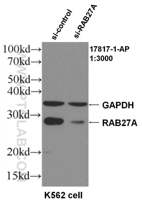 WB result of RAB27A antibody (17817-1-AP, 1:3000) with si-Control and  si-RAB7B transfected K562 cells.