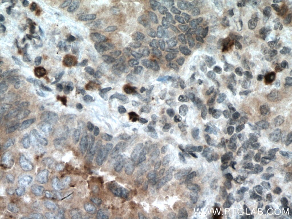 IHC staining of human lung cancer using 66944-1-Ig