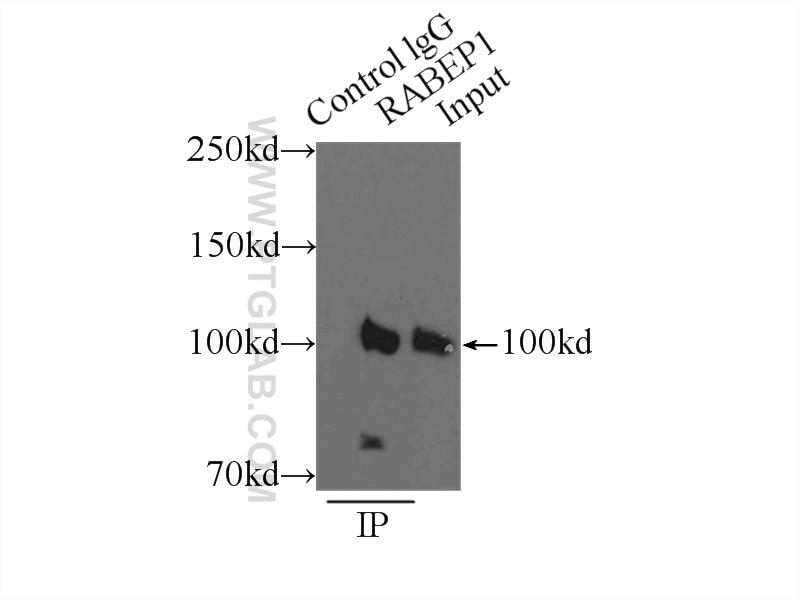 IP experiment of HeLa using 14350-1-AP