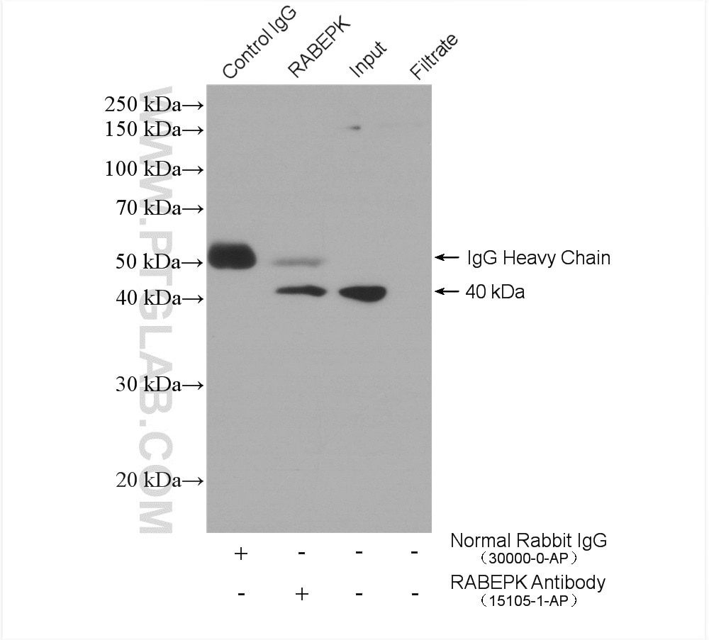IP experiment of HeLa using 15105-1-AP