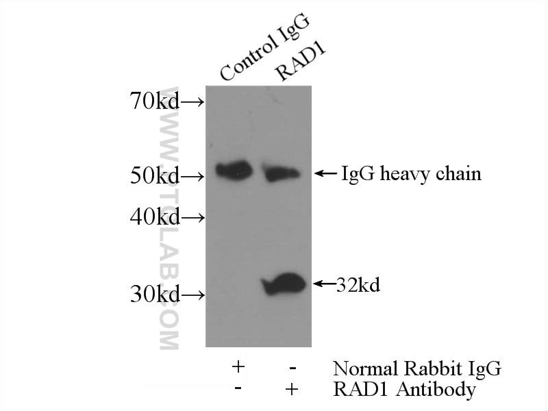IP experiment of HeLa using 11726-2-AP