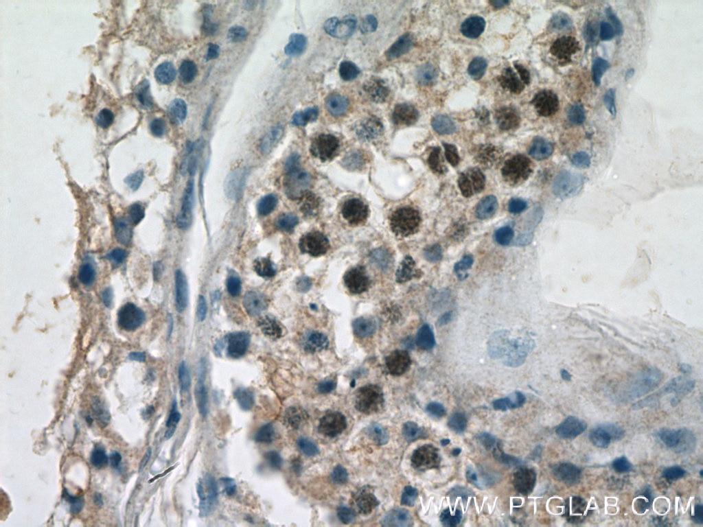 IHC staining of human testis using 14961-1-AP