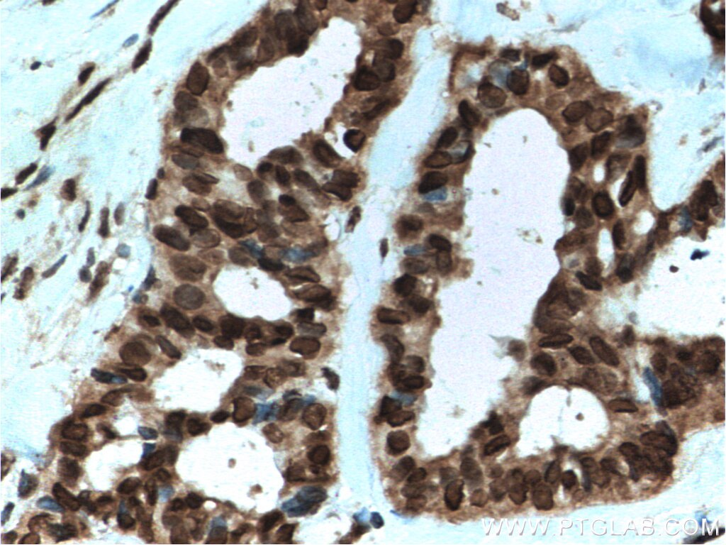 IHC staining of human breast cancer using 10469-1-AP