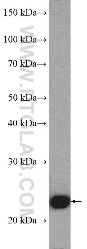 WB analysis of HEK-293 using 10469-1-AP