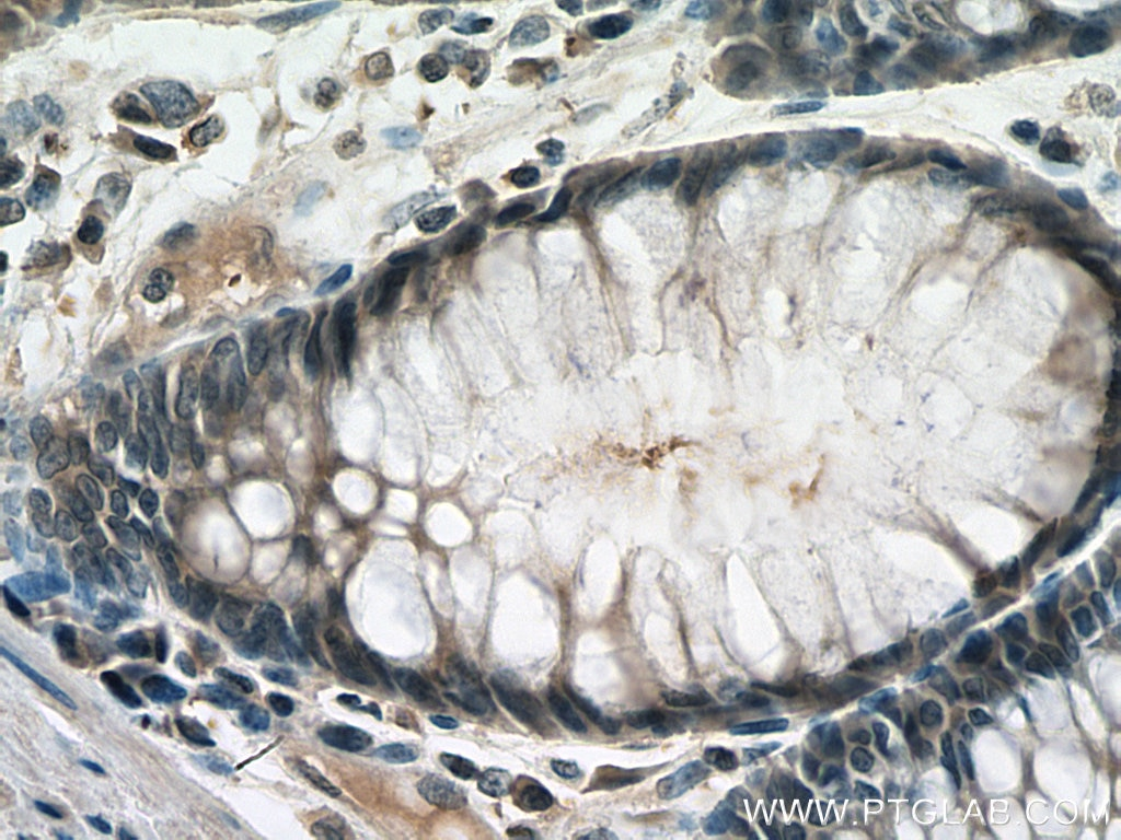IHC staining of human colon cancer using 67500-1-Ig