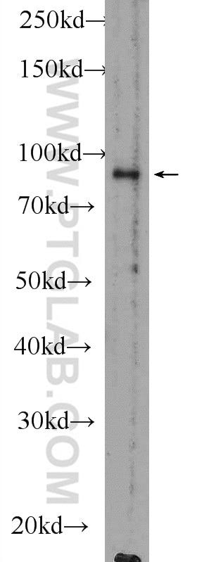 WB analysis of mouse testis using 51038-1-AP