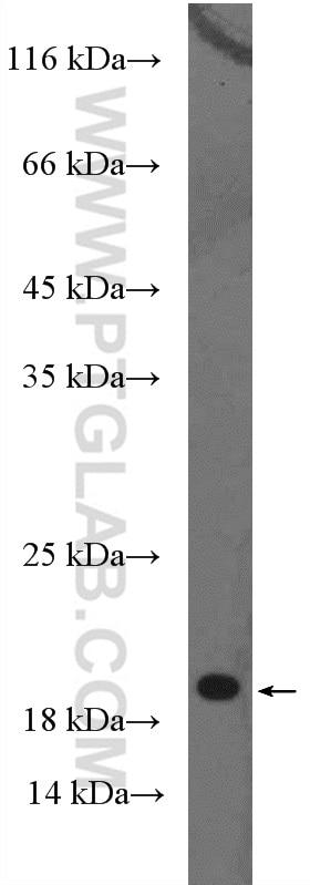 WB analysis of human plasma using 10216-1-AP