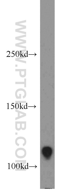 WB analysis of HT-1080 using 17218-1-AP