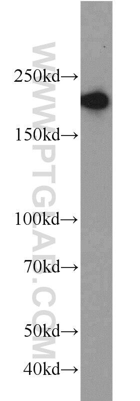 WB analysis of MCF-7 using 10069-1-AP