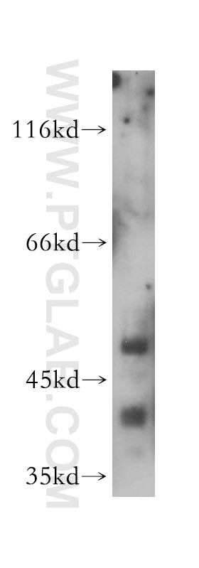 WB analysis of HeLa using 14557-1-AP