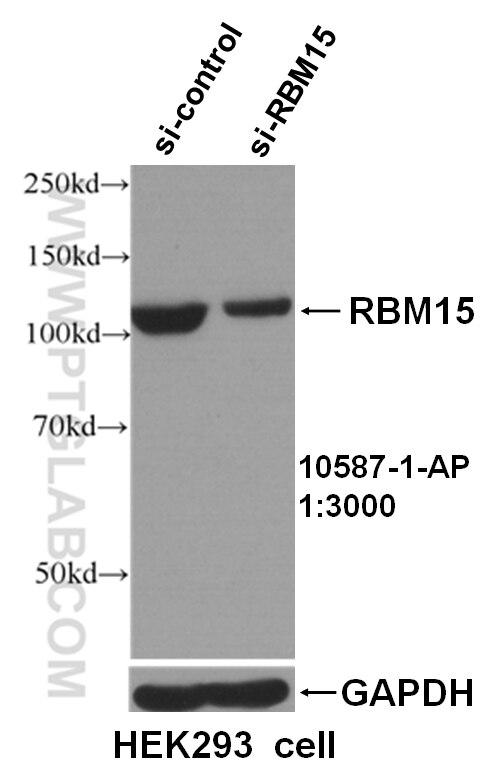 WB analysis of HEK293 cells using 10587-1-AP