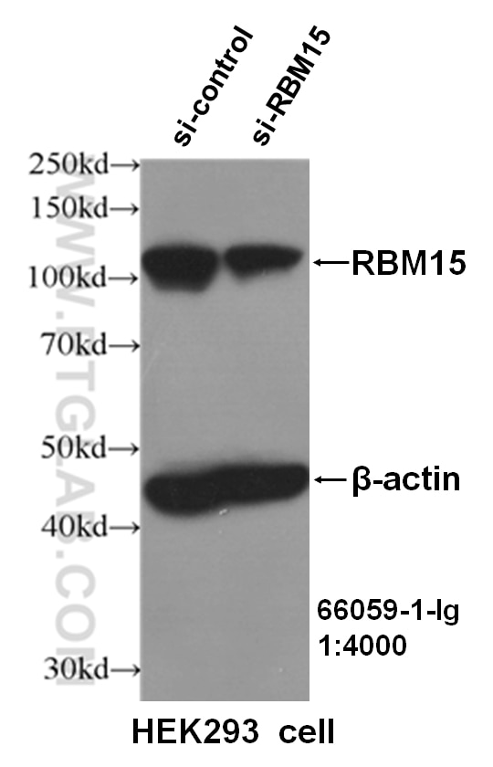 WB analysis of HEK293 cells using 66059-1-Ig