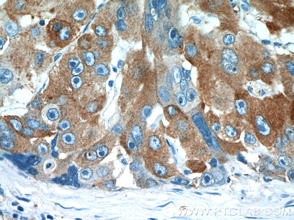 IHC staining of human liver cancer using 11774-1-AP