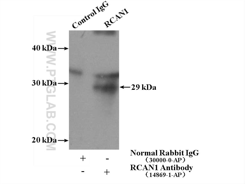IP Result of anti-RCAN1 (IP:14869-1-AP, 4ug; Detection:14869-1-AP 1:500)  with mouse brain tissue lysate 4000ug.
