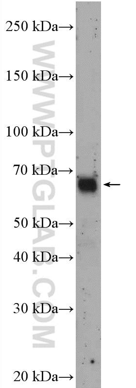 27686 >> Rcor1 Antibody 27686 1 Ap Proteintech