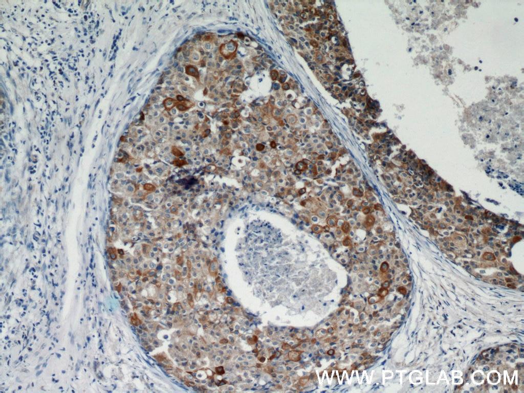 10638-1-AP;human breast cancer tissue