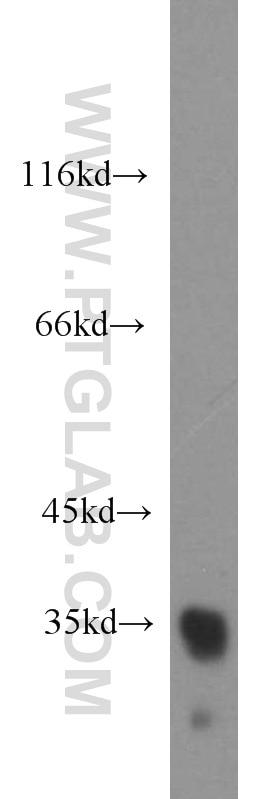 10638-1-AP;K-562 cells