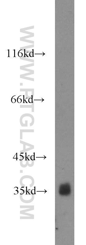 10638-1-AP;PC-3 cells