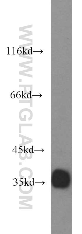 10638-1-AP;MCF7 cells