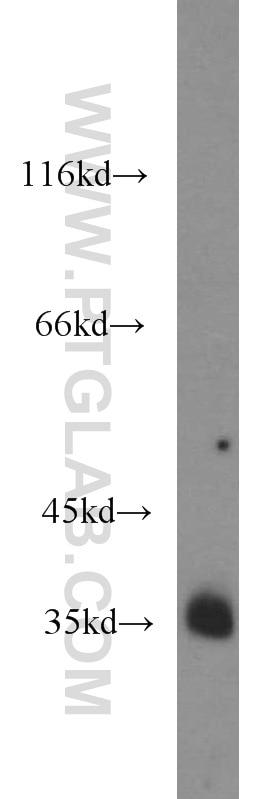 10638-1-AP;LNCaP cells